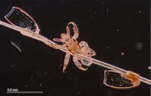 Larva y huevos (liendres muertas)