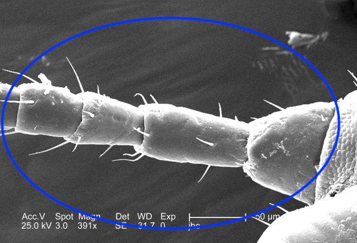 Imagen dorsal de la antena de un piojo