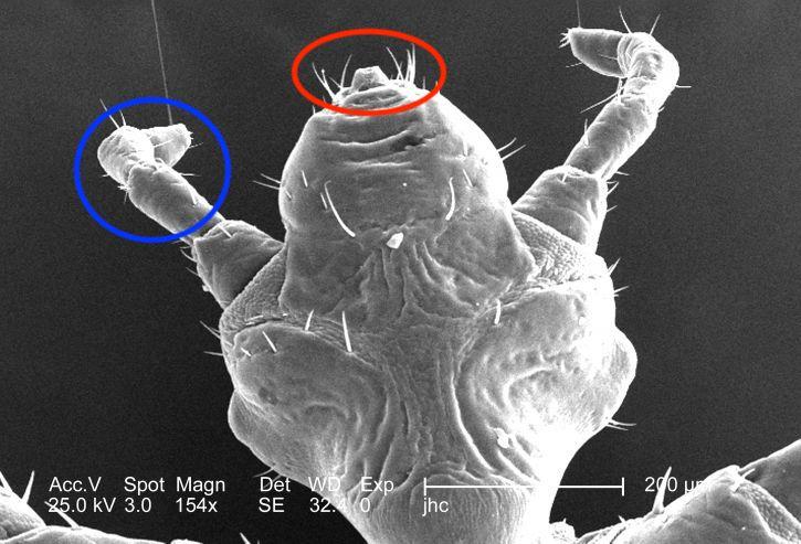 Micrografía de la cabeza del piojo