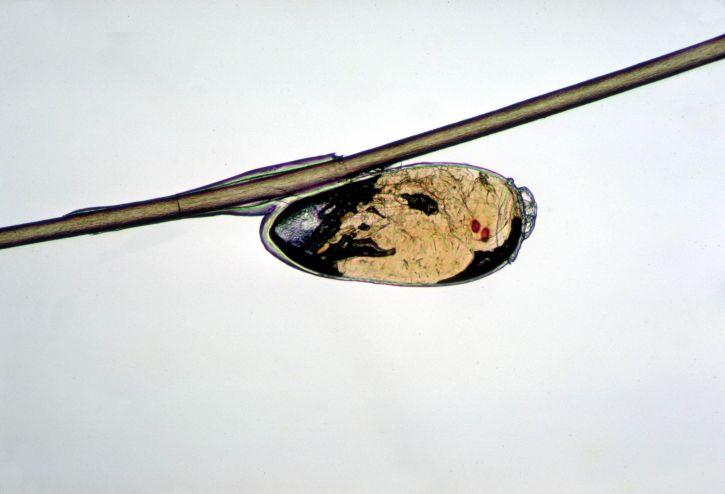 Liendre no eclosionada adherida al cabello por Dr. Dennis D. Juranek, USCDCP